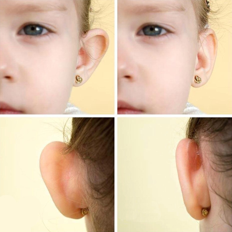 Otostick Cosmetic Ear Correctors | eBay