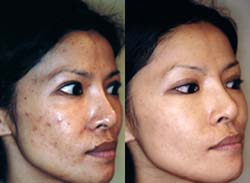 Before and after using Clearogen Anti-Blemish System