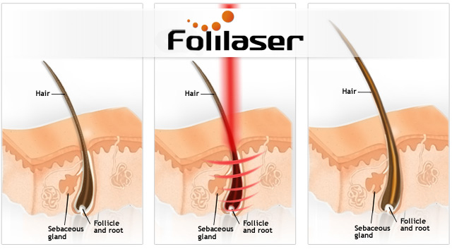 Folilaser Laser Comb directs lasers directly to the root of each hair for most effective results