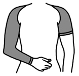Solidea Arm Care Diagram