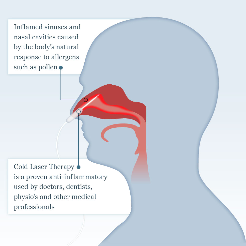 Cold laser for rhinitis
