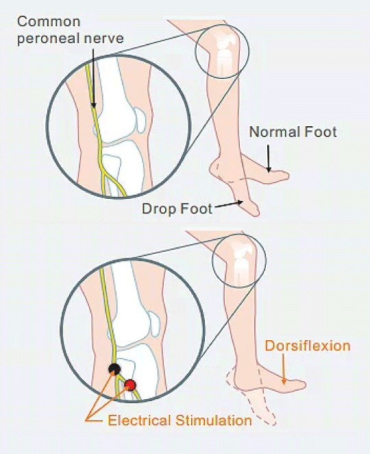 xft foot drop how it works
