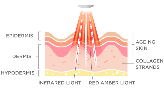 Collagenius Light Therapy How it Works