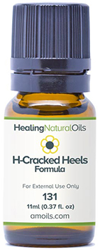 Healing Natural Oils cracked heels