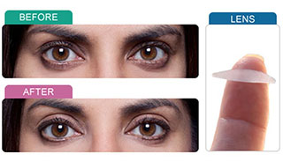 instant eye lift strips