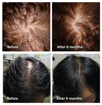 revivogen hair growth improvement
