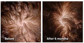 Revivogen conditioner results on hair loss
