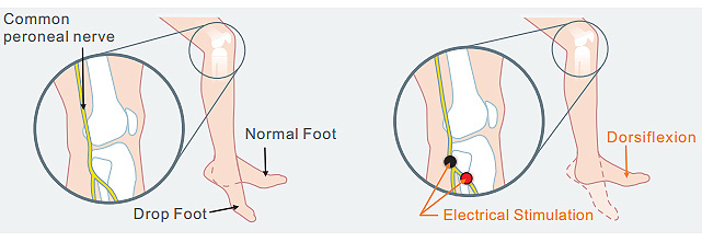xft foot drop how it works