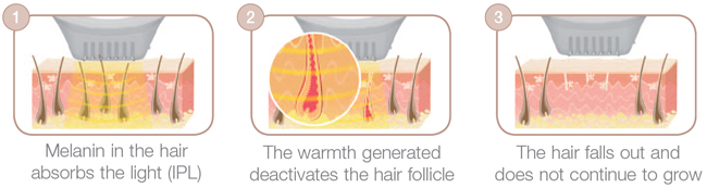 How does The Beurer IPL hair removal system work?