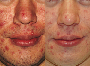 Before and after using Clearogen to treat acne
