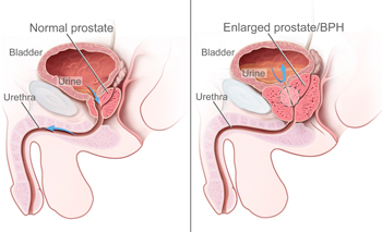 compare a healthy prostate with an enlarged prostate which causes benign prostatic hyperplasia or BPH