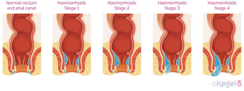 Stages of Haemorrhoids