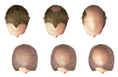 hair loss patterns in men and women