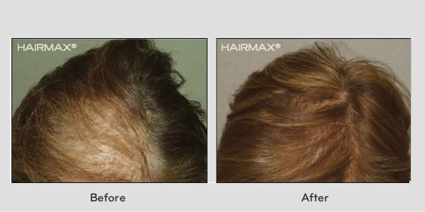 before and after hair growth with lasercomb treatment