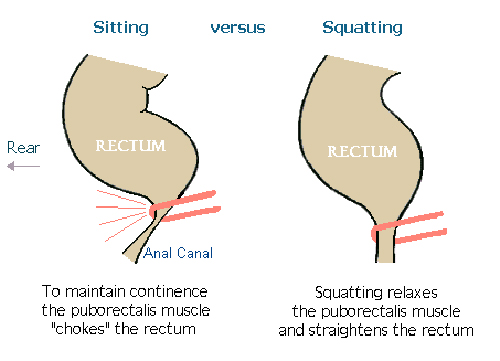 Squatting rather than sitting allows you to defecate properly