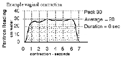 Strong pelvic floor contractions on Peristron graph