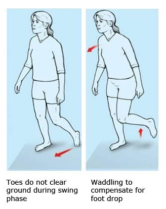 Foot drop makes walking laboured and unbalanced