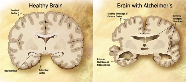 Healthy Brain & Alzheimer's Brain