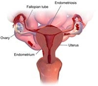 What is Endometriosis diagram